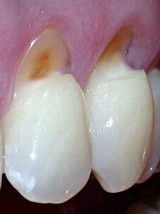 Smalto denti rovinato